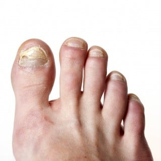 24. Fungal nails are the tip of the iceberg - MIR-Method